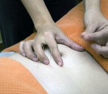 Why Acupuncture Treatment in Toowoomba Proves Effective for Local Clients
