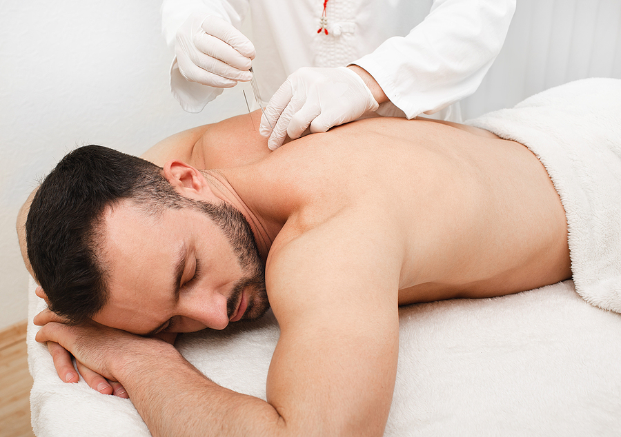 acupuncture to treat male patient.